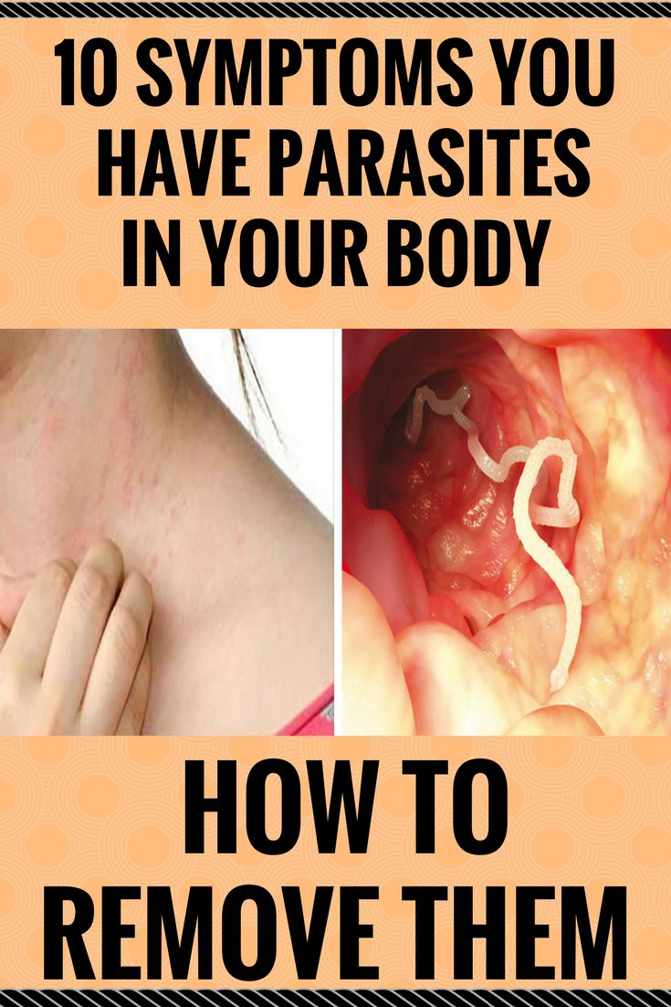 10 Symptoms You Have Parasites In Your Body (And How To Remove Them) $'