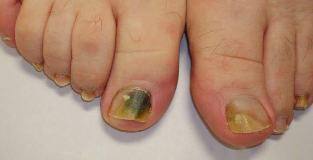 Fendas em dedos de mãos sobre um tratamento de prego
