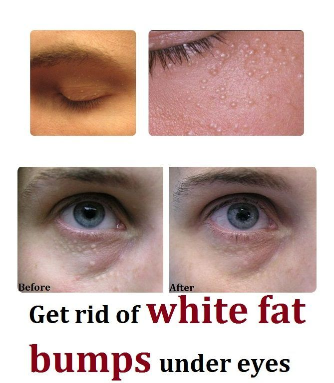 Get rid of white fat bumps undereye | Things to Wear ...