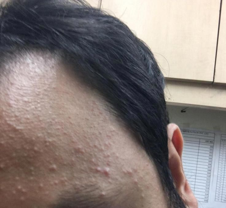 eb4c9ee4b34025bddd1f7808e4daa214 - How To Get Rid Of Little Red Bumps On Forehead
