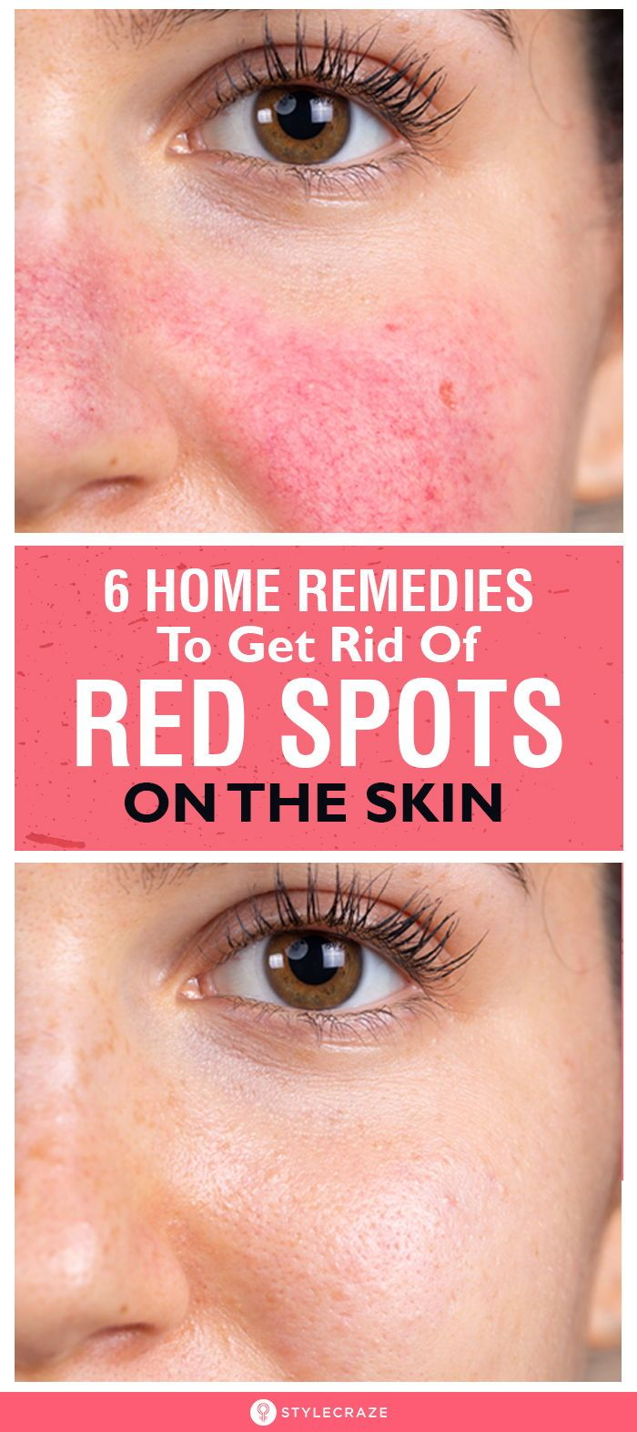 how to cure red rash on face