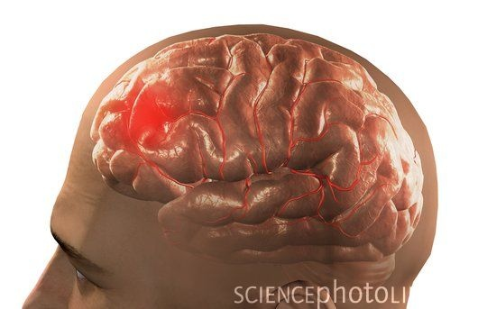#Blood #clots in #Brain -------------------------------- Blood clots in brain is the result of bleeding in brain,which puts pressure on brain tissue and affect the normal functioning of the brain. Center for brain and spine care, the best brain hospital in,Tamil nadu India provides quality treatment like brain operation for blood clots in brain.