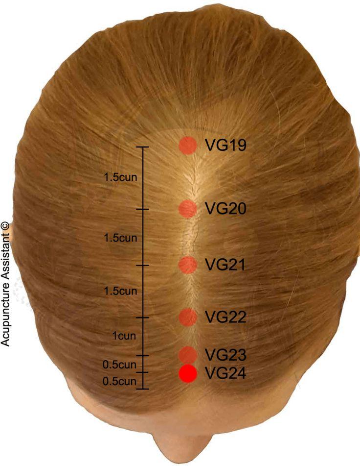 VG24-Shenting-ponto-de-acupuntura.png