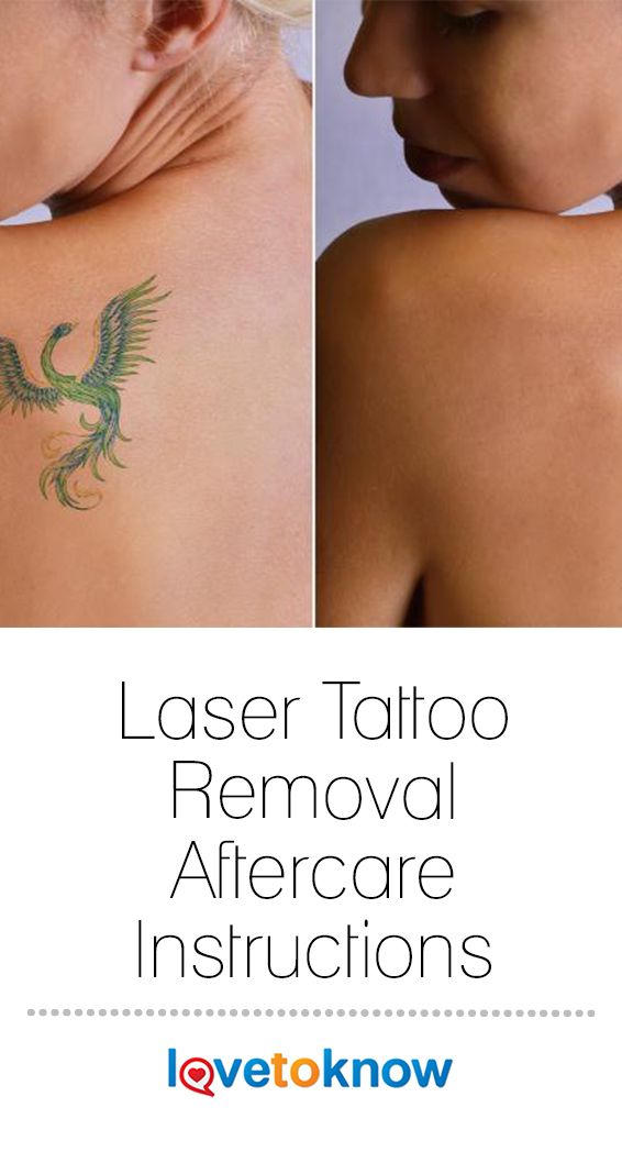 Laser Tattoo Removal Aftercare Instructions Lovetoknow In 2020 Laser Tattoo Removal Tattoo Removal Laser Tattoo