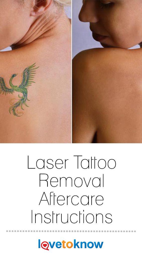 Tattoo Removal Jobs