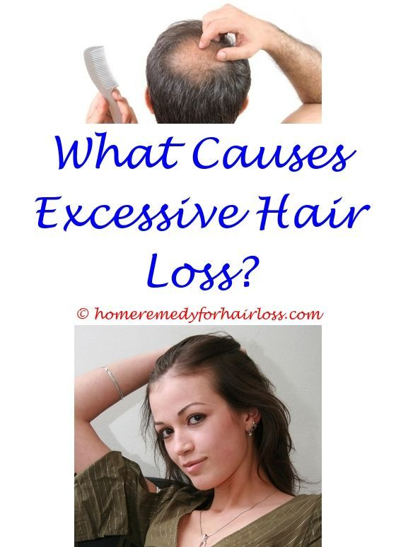 Do Fleas Cause Hair Loss Does Wearing A Hat Everyday Cause Hair Loss Doryx Permanent Hair Loss Does Msm Work For Hair Loss Men Stress Hair Loss Cat Hair Loss