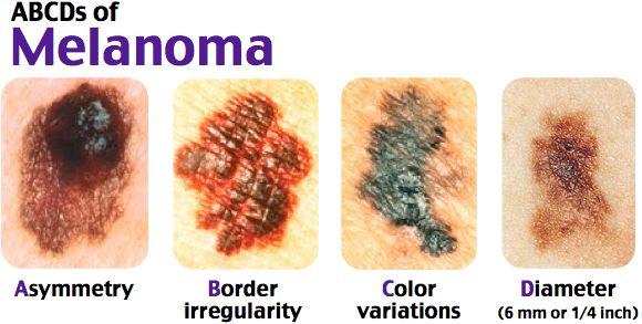 Acral lentiginous melanoma (A).  Lentigo Melanoma.  Nodular melanoma.