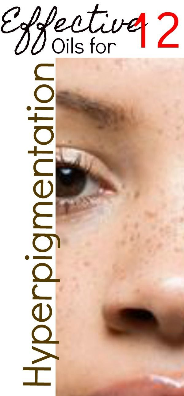 Hyperpigmentation a big word for a big problem, it is the 2nd largest skin concern for women and men in the US and one that affects over 30 million people worldwide. Hyperpigmentation is the production of excess melanin causing dark spots on the skin. Age spots, liver spots, freckles, sun spots, pregnancy mask are all types of hyperpigmentation and there are several treatments available to reduce or remove the darker skin. Hyperpigmentation refers to areas of skin where an excess of melanin…