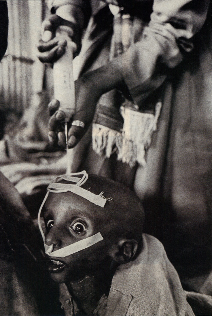 effects of war, poverty, displacement and malnutrition . ...   SEBASTIAO SALGADO Refugee child.  Korem, Ethiopia.  1984