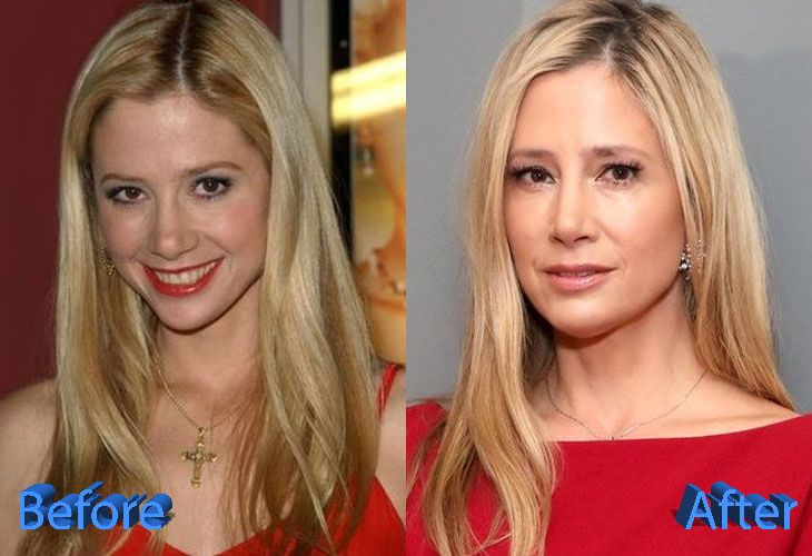 Mira Sorvino Before And After Plastic Surgery Plastic Surgery Celebrity Plastic Surgery Mira Sorvino