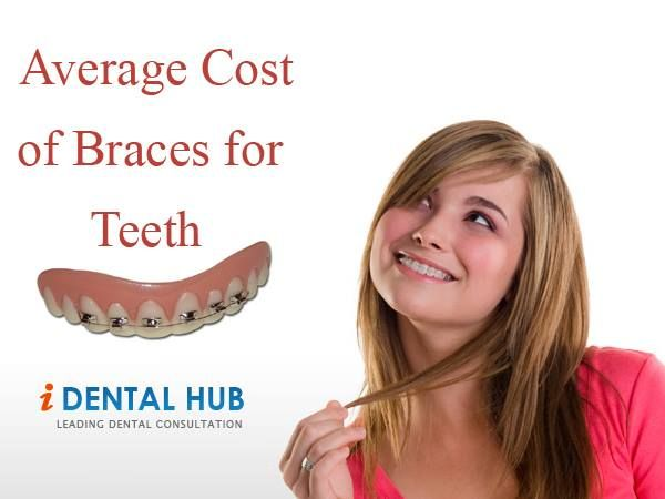 Average Cost of Braces for Teeth