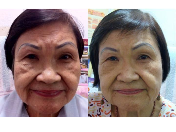 Say goodbye to all the wrinkles and laugh lines!