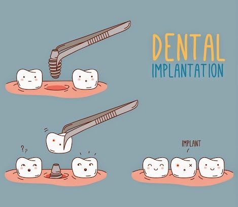 Dental Implantation  http://www.giedentallab.com/index.php?option=com_content&view=article&id=53&Itemid=79