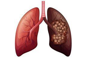 Como limpar o pulmão após parar de fumar