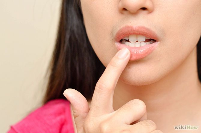 How to Cure Exfoliative Cheilitis  - Peeling lips