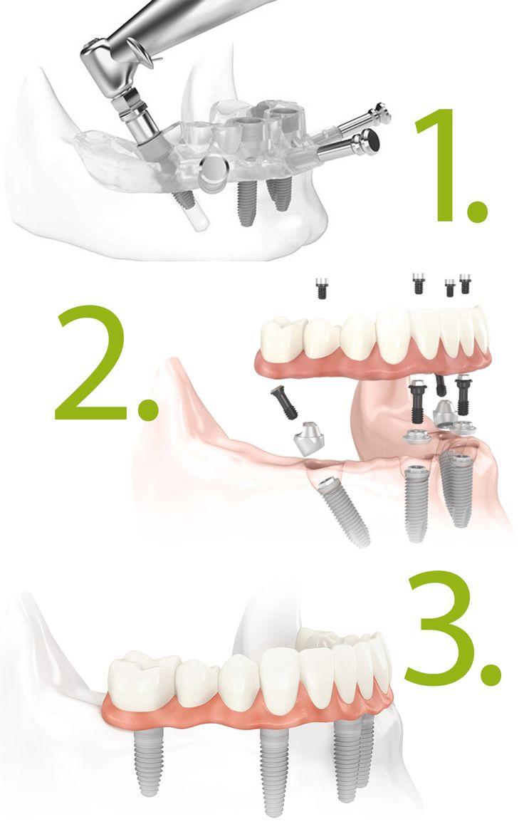 ALL-ON-FOUR La tecnica di impianto dentale All-on-4 ® offre benefici veloci e duraturi:  - Permette di ottenere RISULTATI IMMEDIATI.  - Migliora l'aspetto estetico.  - Consente di mangiare quello che si vuole, quando si vuole, dove si vuole. - Permette di ritrovare il sorriso. - Elimina i problemi di salute associati alla mancanza di denti.  - Facilita la cura della dentatura.