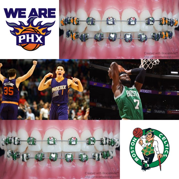 #phoenixsuns vs #bostonceltics #phoenix #suns #phx #arizona #boston #massachuset…