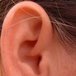 Cómo quitar la cera del oído