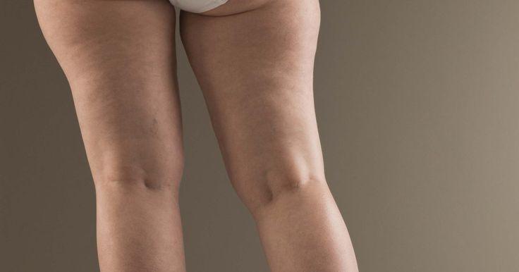 Como aumentar os quadris, coxas e bumbum. Livrar-se do peso indesejado na parte inferior do corpo é uma tarefa desafiadora para mulheres de quadril largo. Porem existem benefícios em se ter esta forma. Segundo o International Journal of Obesity, as pessoas com peso adicional nos quadris, coxas e bumbum tem uma linha extra de defesa contra a diabetes, doenças cardíacas e outras condições ...