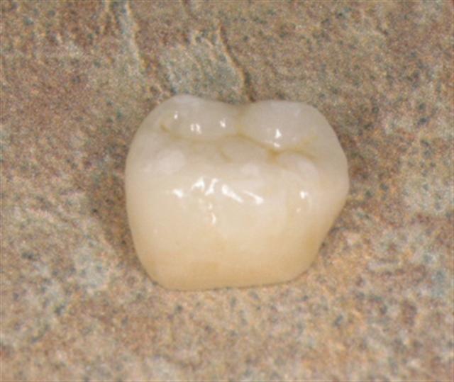 Porcelain Ceramic Crown Vs Full Gold Crown Blog Posts