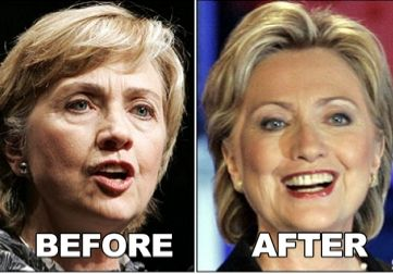 Hillary-Clinton-Plastic-Surgery