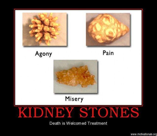 funny kidney stones pics | Demotivational posters kidney stones motifake 47161