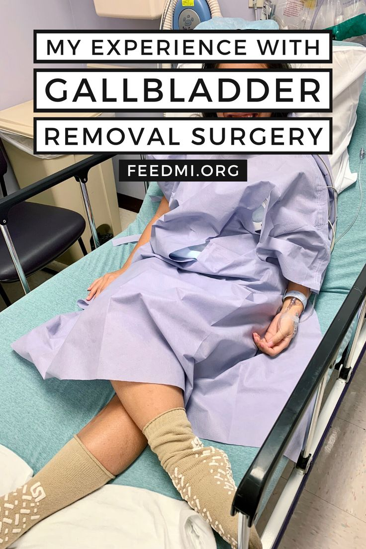 What you need to know about gallbladder removal surgery in