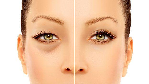Aprende a preparar este tratamiento natural y podrás eliminar las ojeras de tu rostro, además hidratarás tu piel. Mira la receta aquí.