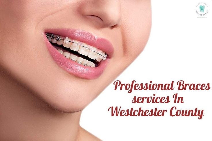The professional you choose should offer you the Best Priced #BracesWestchester residents can choose, while they provide great service and close monitoring of your #teeth alignment process. The best service, comfortable care during the #braces #treatment are just some of the perks you enjoy at the #PlayaVistaOrthodontists. In or around #Westchester? Call us for a complimentary consultation today!