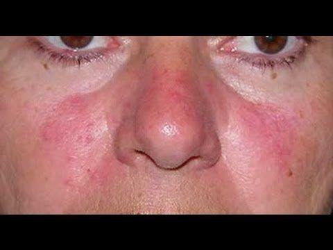 Cremas Para La Rosacea - Laser Para Rosacea, Piel Con Rosacea http://rosacea-tratamiento.info-pro.co ¿Tienes Rosácea?  La rosácea es una enfermedad crónica de la piel , que afecta mayormente la cara. Las mujeres se ven afectadas con más frecuencia en las primeras etapas (enrojecimiento y eritrosis), pero en hombres de más de 40 años de edad esta condición puede progresar a estadios avanzados y rinofima. La rosácea se caracteriza por diversos trastornos de la piel