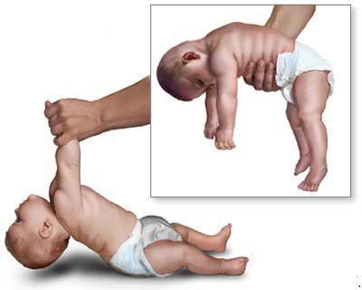 Flacidez en los bebés, síntoma frecuente del botulismo