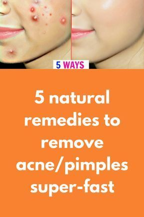 5 instant remedies to remove acne/pimples in just 1 night