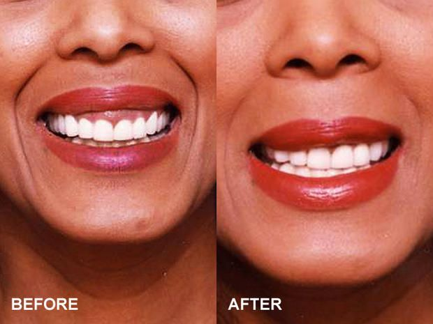 Gummy smile repair #plastic #surgery