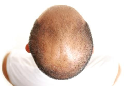 Baldness Prevention – How to Treat it Effectively?