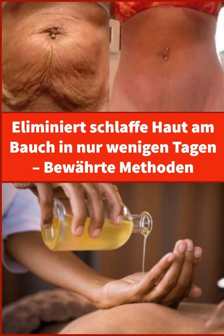 Eliminiert schlaffe Haut am Bauch in nur wenigen Tagen – Bewährte Methoden – …