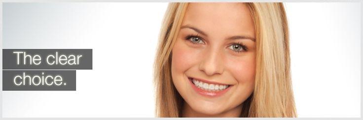 The Clear Choice, 3M Clarity  www.vargosmile.com - Vargo Orthodontics