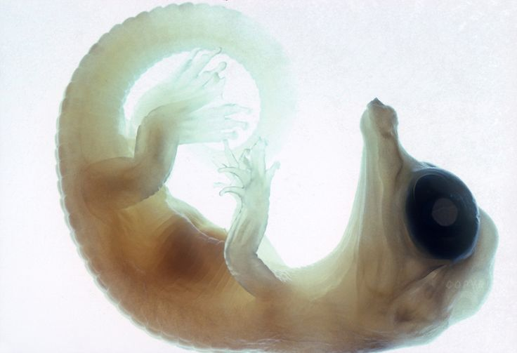 Alligator embryo