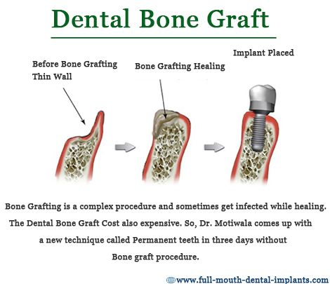 #Bonegrafting is a surgical system that replaces lacking bone to be able to restore bonefractures which are extremely complex, pose a big health hazard to the sufferer (or) fail to heal properly. #Dr.Motiwala comes up with a new technique called permanent teeth within three days without bone grafting procedure. http://full-mouth-dental-implants.com/bonegrafting.php
