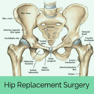 What is Hip Dysplasia? The hip is the largest ball-and-socket joint in the body, and is held together by ligaments, tendons and a joint capsule. The ball is called the femoral head, which is at the top of the femur bone, and the socket is called the acetabulum, which is part of the pelvis. The femoral head fits into the acetabulum creating the hip joint, so the ball can rotate freely in the socket. Cartilage covers the femoral head and the acetabulum, called the joint capsule, so the joint…