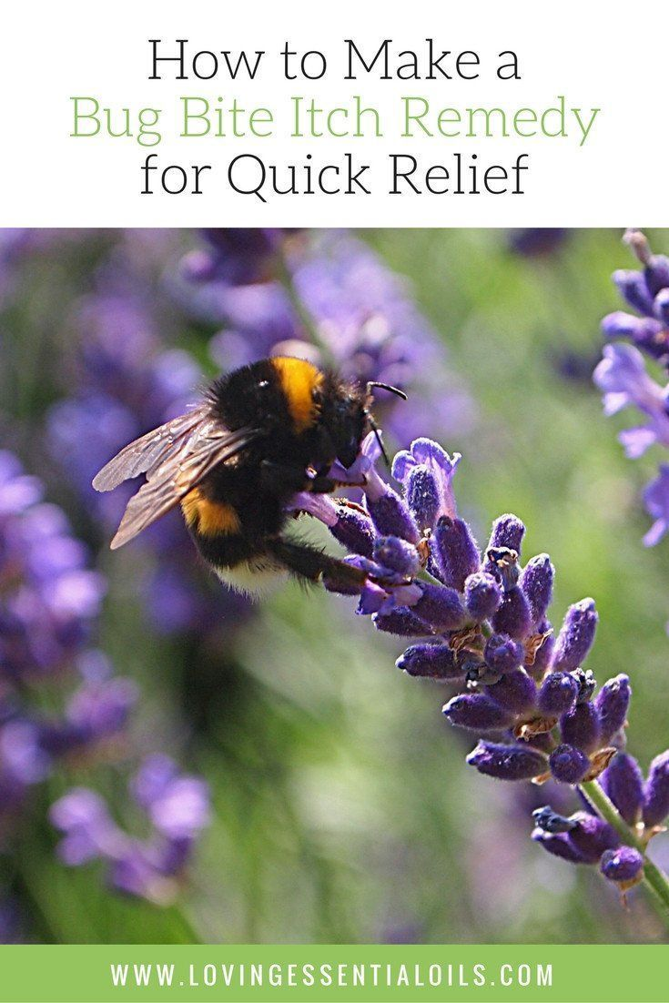 How to Make a Bug Bite Itch Remedy for Quick Relief Pinterest