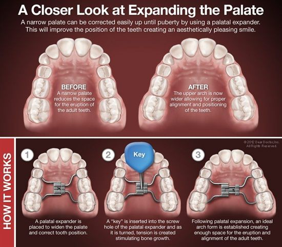 Dentaltown - A narrow palate can be corrected easily up until puberty by using a palatal expander. This will improve the position of the teeth creating an aesthetically pleasing smile.