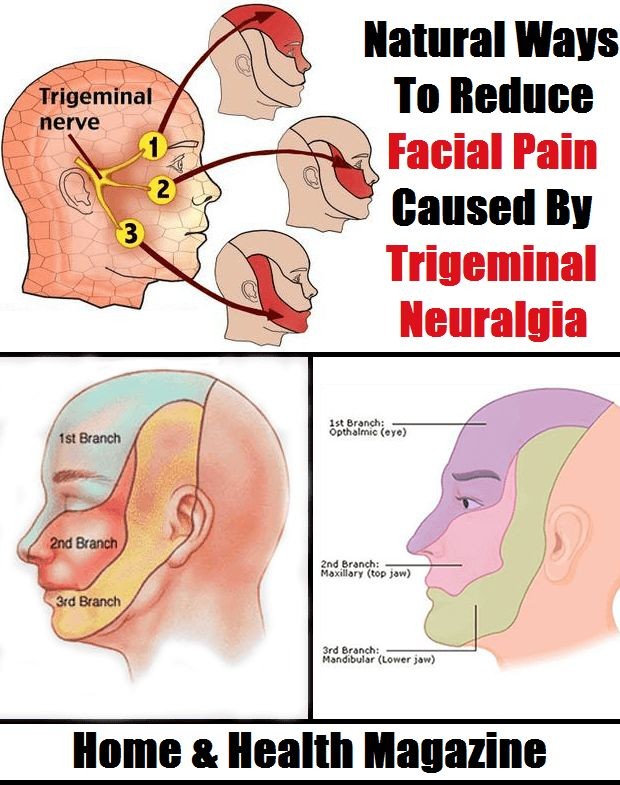 Damage to one or all of the Trigeminal nerve branches results in Trigeminal Neuralgia, or better known as facial pain.