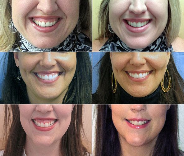 """Bothered by a 'Gummy Smile' --- Botox is increasingly being used to correct a """"gummy smile""""  www.creativeimagelasersolutions.com"""