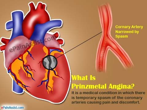 What Is Prinzmetal Angina?