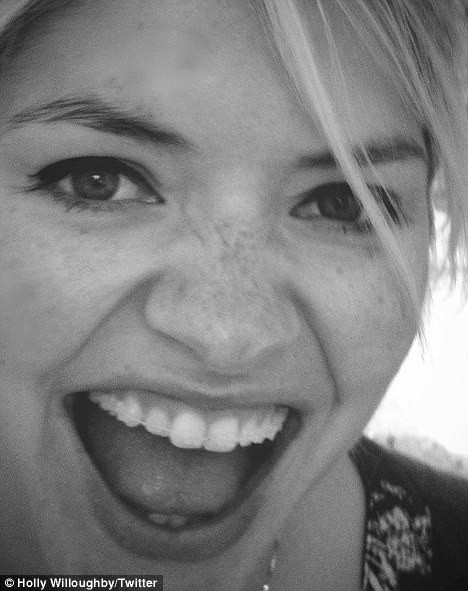 Straighter your teeth the same way Holly Willoughby did with Cfast, now at Bury Dental Centre