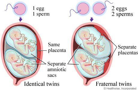 A Multiple Birth. Identical births are twin girls and or twin boys. Fraternal births can either be girls, boys, or a girl and boy.