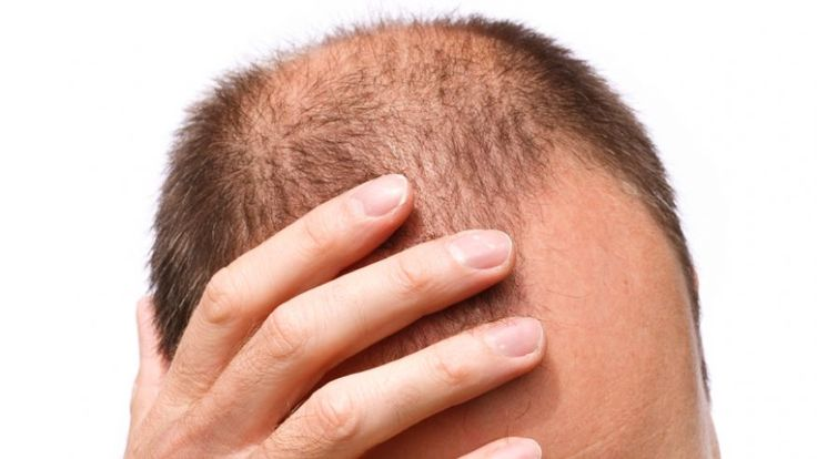 It's true that men are more likely to lose their hair than women, mostly due to male pattern baldness (more on that later). But thinning hair and hair loss are also common in women, and no less demoralizing. Reasons can range from the simple and temporary—a vitamin deficiency—to the more complex, like an underlying health [...]