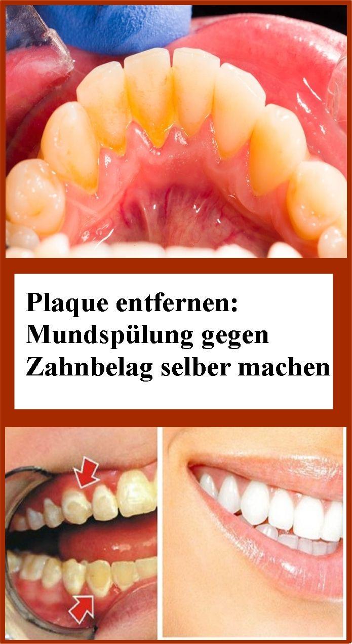 Plaque entfernen: Mundspülung gegen Zahnbelag selber machen | njuskam!