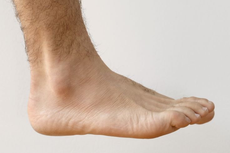 How to Treat a Torn Ankle Ligament
