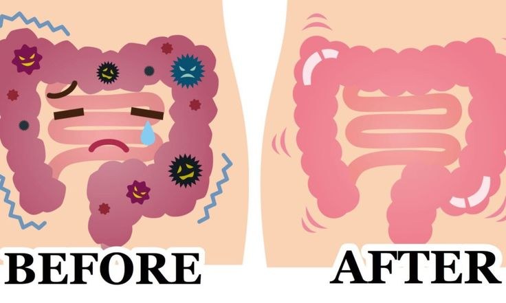 This easy 2 ingredient remedy cleanses your colon fast and flushes toxins from the body. Here's how to make it...